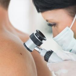Melanoma - tyli, bet grėsminga odos liga
