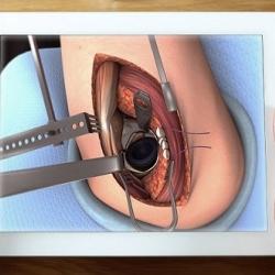 Ligoniai žaidžia gydytojus: chirurgams skirta programėlė patiko pacientams